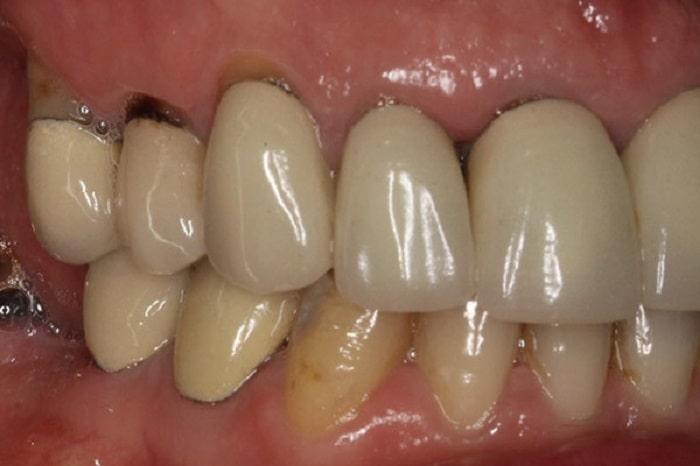 Vì vậy, xét về độ ăn toàn thì Bọc răng sứ bằng Titan có phần nhỉnh hơn khi phục hình bằng sứ kim loại.