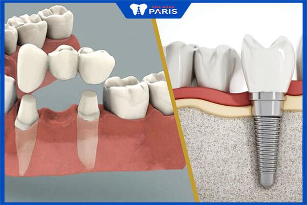 Nên lựa chọn kỹ thuật phục hình răng nào tốt hơn