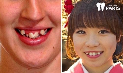 người có 4 răng nanh tự nhiên