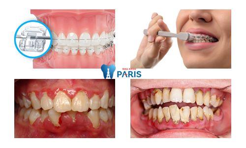 nguyên nhân bị tụt lợi hở chân răng