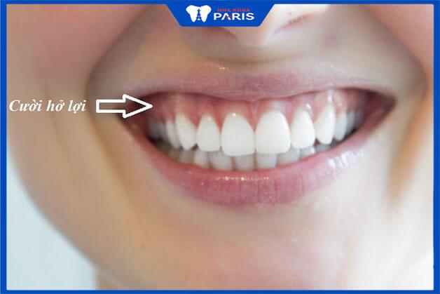 Nguyên nhân của cười hở lợi