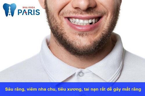 Các nguyên nhân dẫn tới mất răng