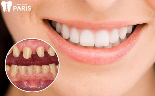 Nguyên nhân răng bị ê buốt là gì