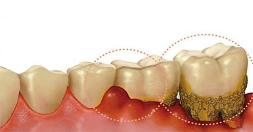 Nguyên nhân sưng mộng răng là gì