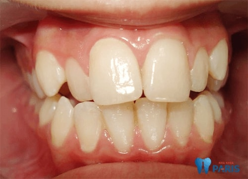 nhổ 4 răng để niềng răng