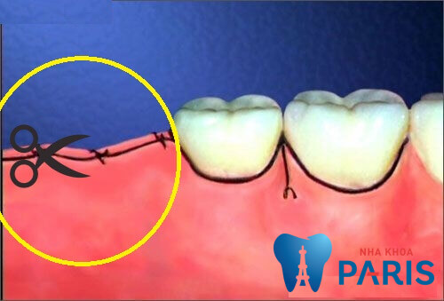 Nhổ răng khôn bao lâu thì cắt chỉ