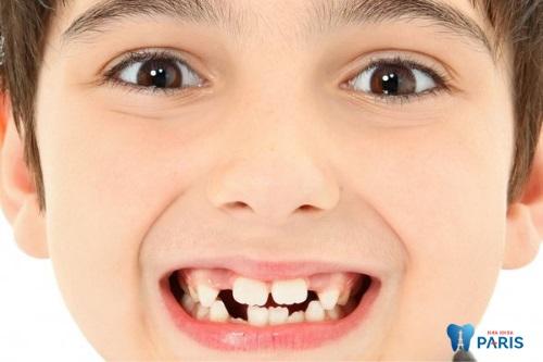 nhổ răng mọc lẫy