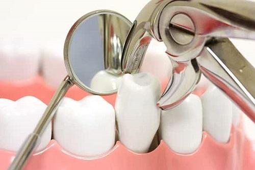 nhổ răng số 4 có đau không