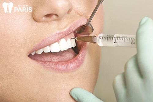 nhổ răng số 4 hàm trên có thay không