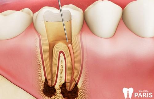 nhức răng cấm phải làm sao