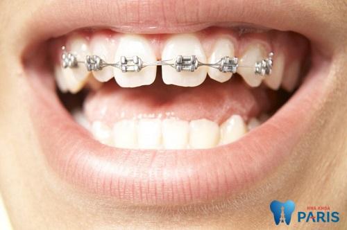 Liệu có niềng răng 1 hàm được hay không là thắc mắc của nhiều người