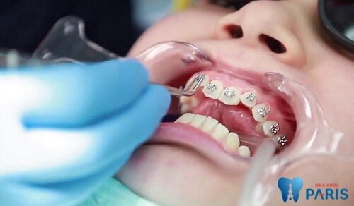 Niềng răng 1 hàm áp dụng khi răng chỉ bị lệch lạc 1 hàm nhẹ