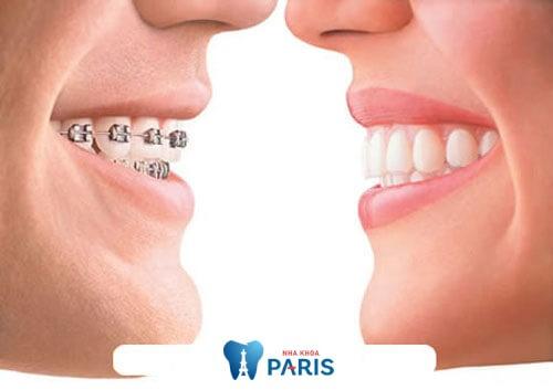 Niềng răng hai hàm vẫn là giải pháp tối ưu nhất