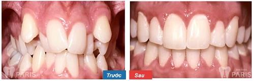 niềng răng 3d clear aligner