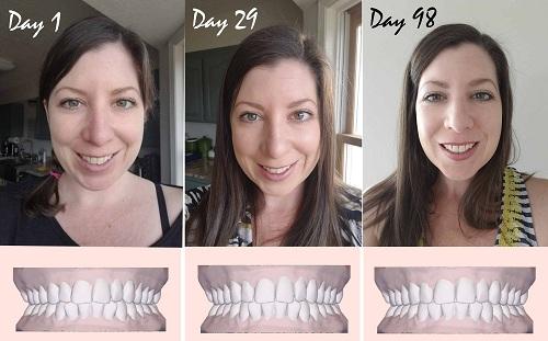 niềng răng 3D Clear có hiệu quả không