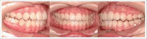 niềng răng 3d clear là gì