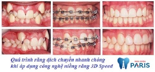 niềng răng 3d speed giá bao nhiêu