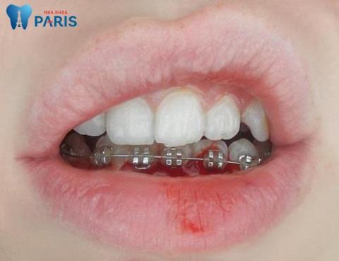 Niềng răng sai cách khiến răng, xương hàm tổn hại, gây hóp má