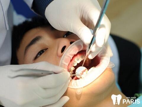 Địa chỉ niềng răng uy tín sẽ giảm thiểu nguy cơ niềng răng má hóp