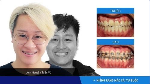 niềng răng chỉnh hàm lệch