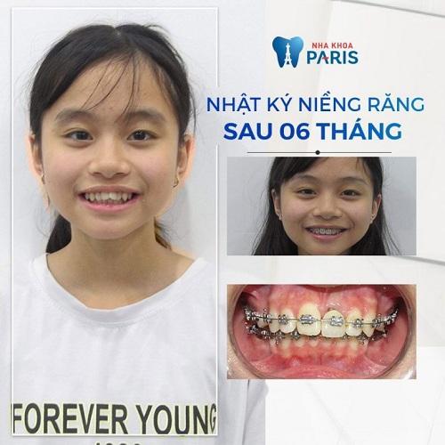 niềng răng cho bé 7 tuổi