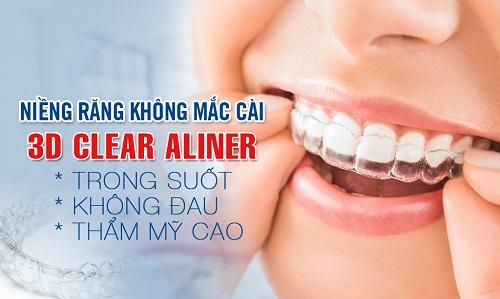 niềng răng clear aligner bao nhiêu tiền