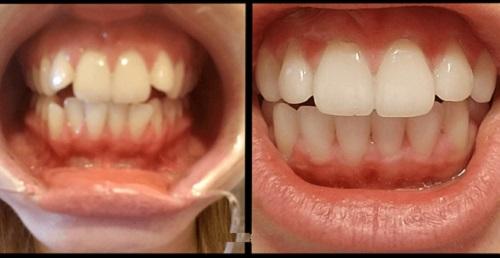 niềng răng clear aligner hà nội