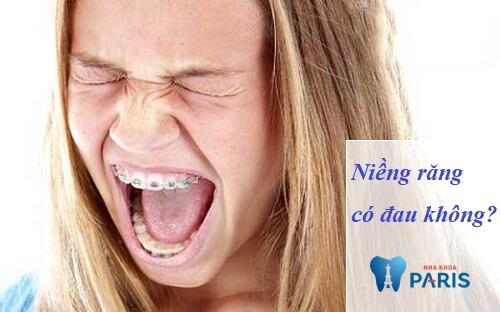 niềng răng có đau không webtretho