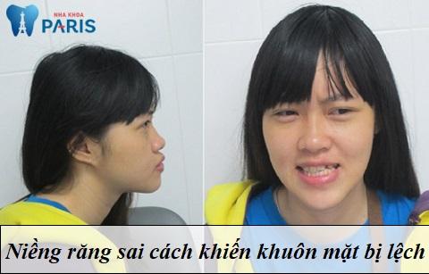Niềng răng có làm khuôn mặt thay đổi theo chiều hướng tiêu cực