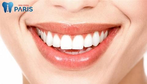 Niềng răng có thay đổi số phận hay không là thắc mắc chung của nhiều người