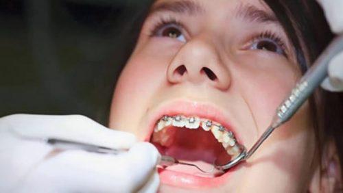 niềng răng đau quá