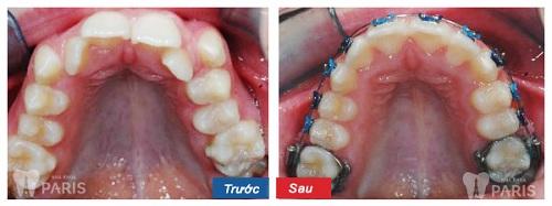 Răng hàm mọc lệch ra ngoài