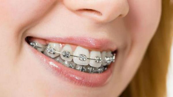 Niềng răng để không phải lo nghĩ về răng hô cười sao cho đẹp