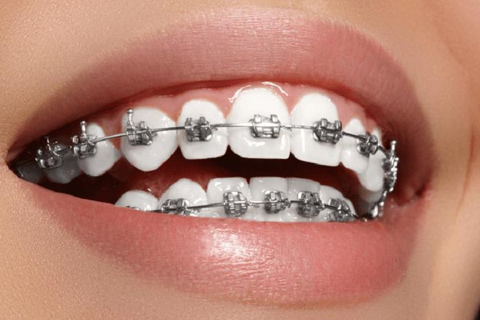 niềng răng mắc cài kim loại truyền thống