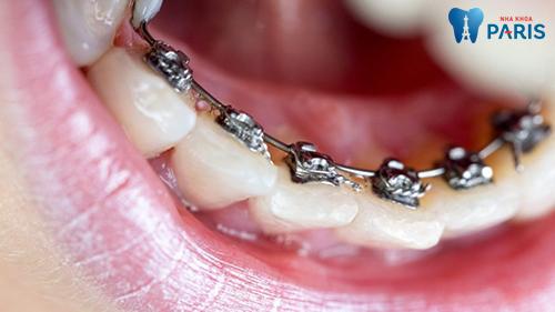 niềng răng mắc cài mặt trong