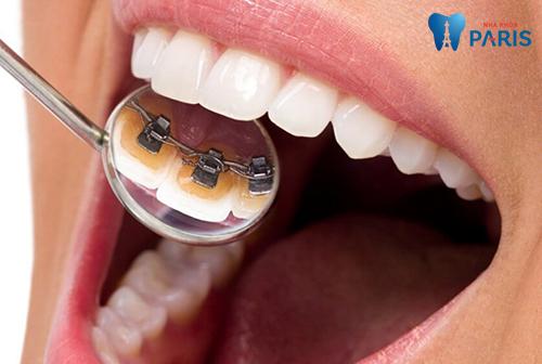 chi phí niềng răng mắc cài mặt trong