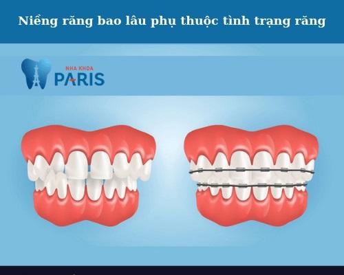 niềng răng mất bao lâu và bao nhiêu tiền
