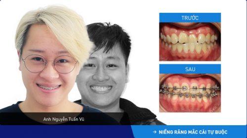 niềng răng móm trong bao lâu