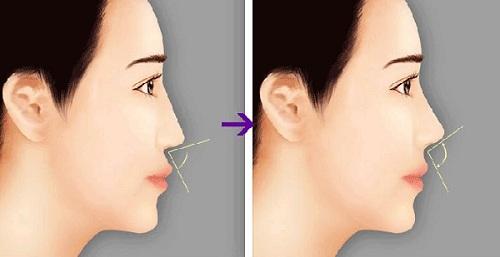 niềng răng mũi có cao lên không