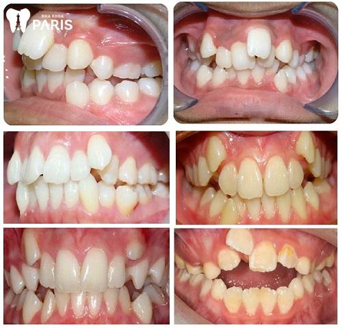 niềng răng nhổ răng số 4 bao lâu thì lành