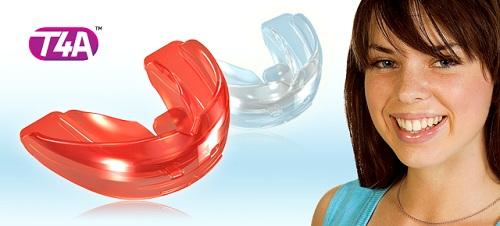 niềng răng silicon cho người lớn