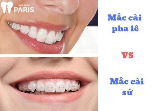 niềng răng tốn bao nhiêu tiền