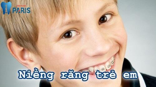 niềng răng trẻ em giá bao nhiêu