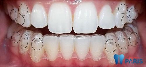 Niềng răng trong suốt giúp bạn tự tin giao tiếp trong khi chỉnh nha