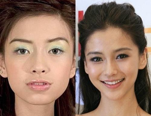 niềng răng trước và sau