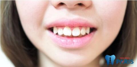 Khách hàng niềng răng xong vẫn xấu, răng vẫn hô và chưa đều