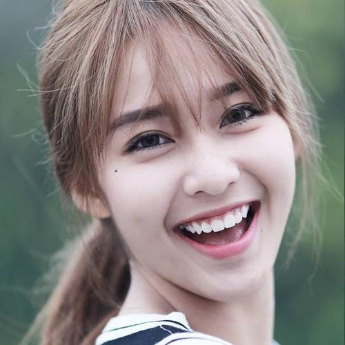 Nụ cười hở lợi là gì