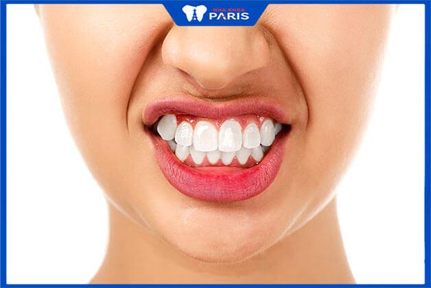 Phẫu thuật cười hở lợi có đau không