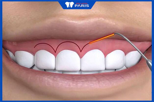 Phẫu thuật cười hở lợi giá bao nhiêu tiền tất cả?
