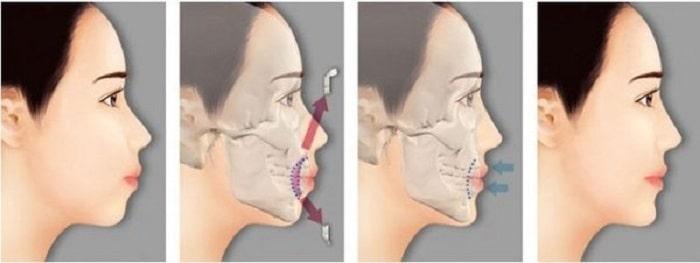 Phẫu thuật hàm hô là gì